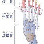 まずは中足骨骨頭の場所を確認!